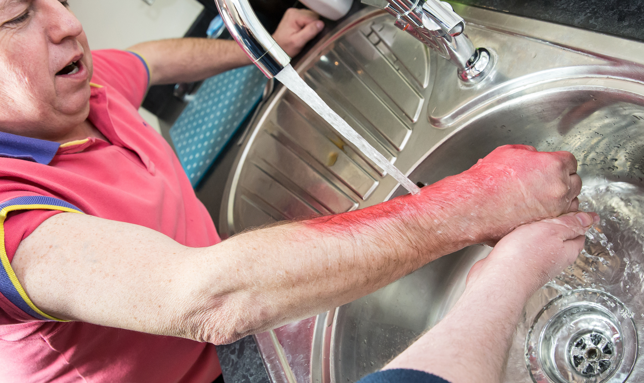 PE0821_scald-injury.jpg